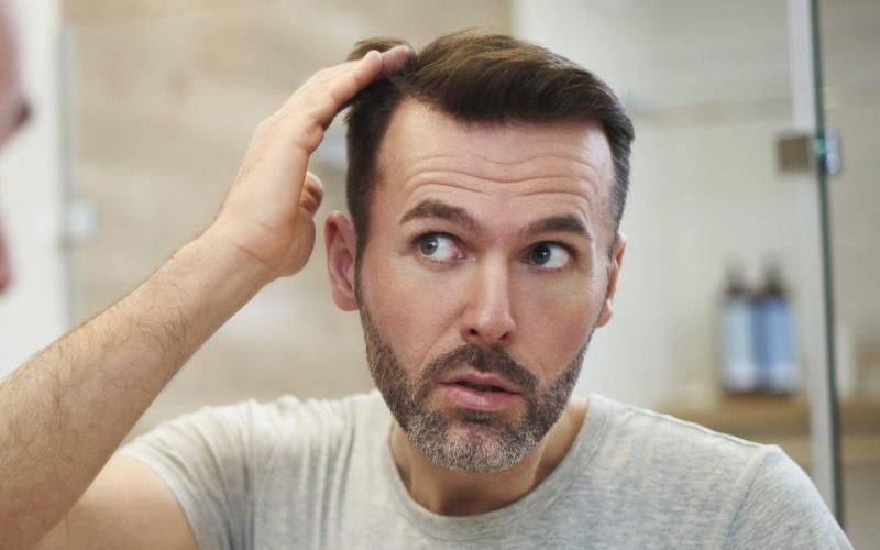 Vererbter Haarausfall:  Welcher Typ bist Du?